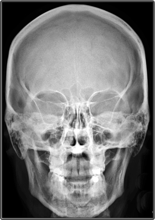 Clinical Anatomy | Radiology | Skull Bones